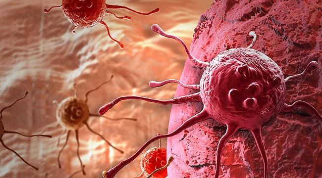 2030 Yılında Kanser 3 katına çıkacak!