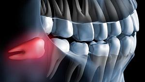 Oral cerrahide piezoelektrik kullanımı?