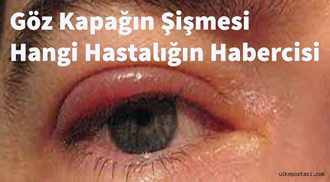 Göz Kapağın Şişmesi Hangi Hastalığın Habercisi?