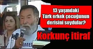 13 yaşındaki Türk erkek çocuğunun derisini soydular?